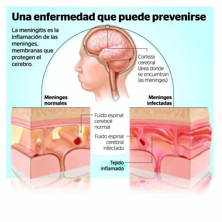 Genital Herpes | Herpes Symptoms | Herpes Simplex ...